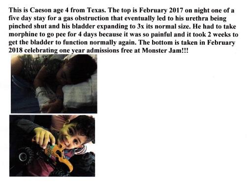 Caeson